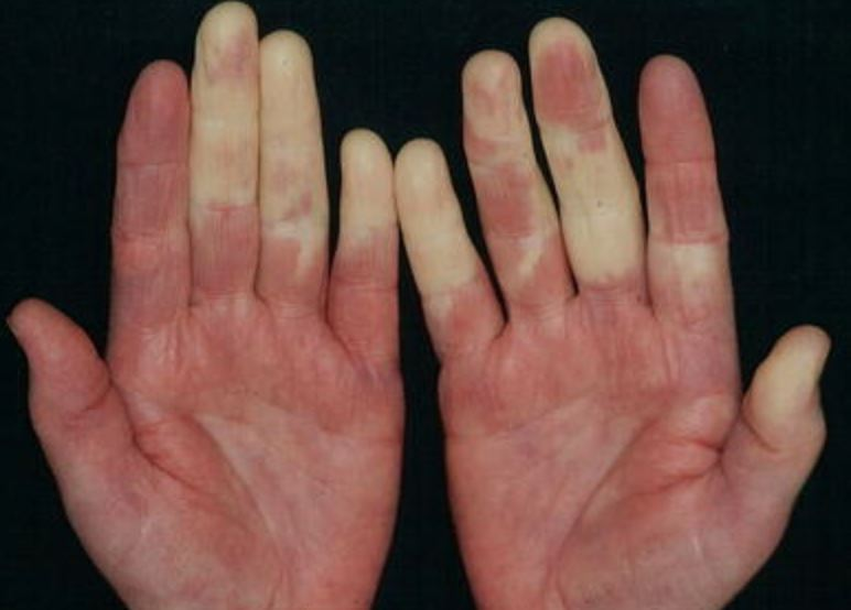 Et sæt hænder med nogle kridhvide fingre