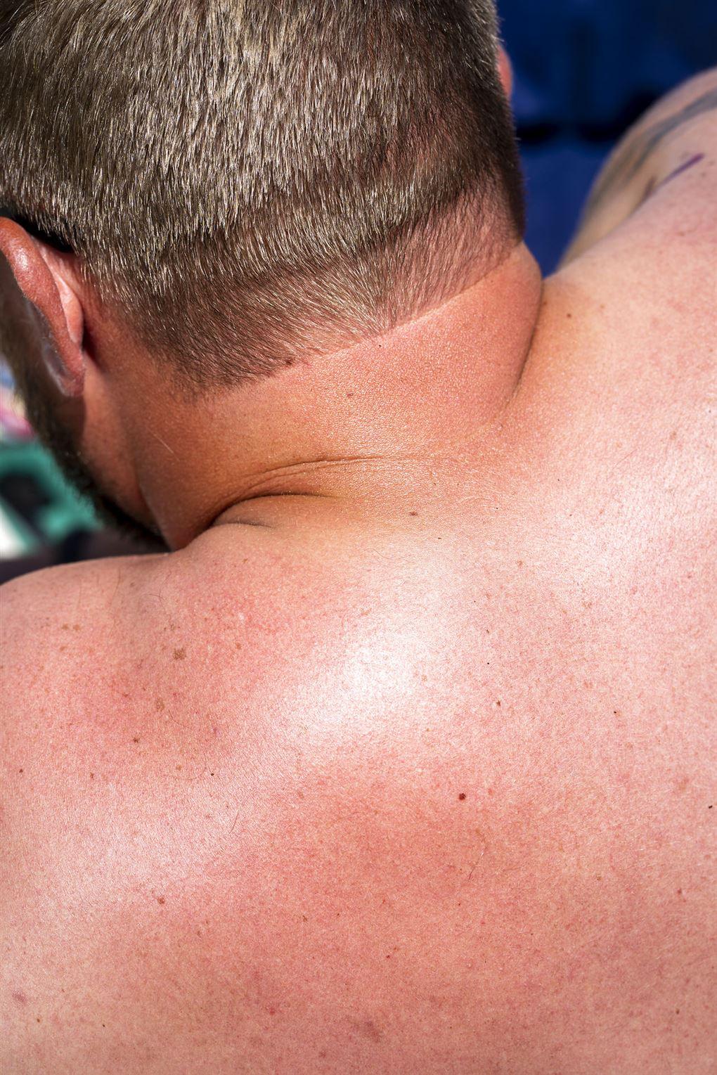 En mandlig rød ryg